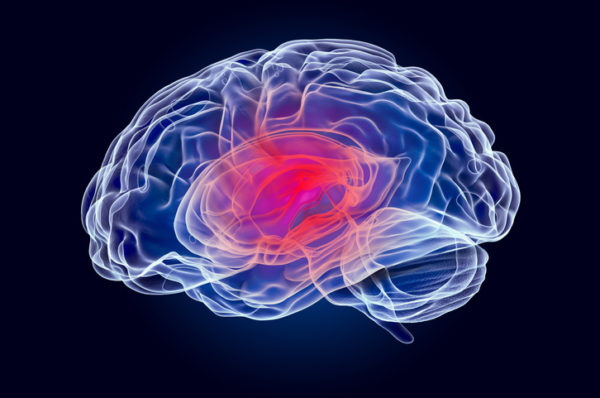 A graphic of a human brain with an injury